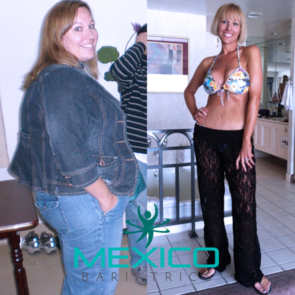 Mexico Bariatrics Testimonials from real patients.