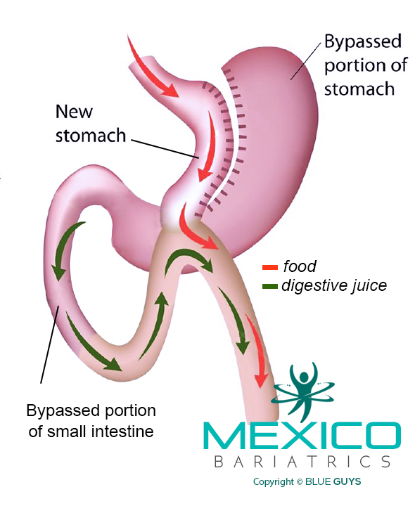 Mini Gastric Bypass Surgery in Mexico.