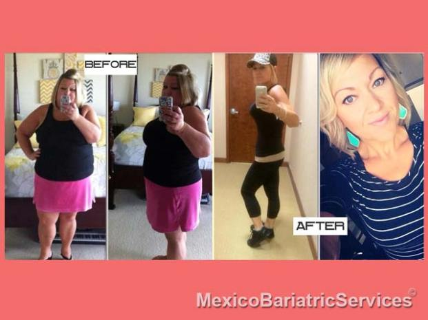 Mexico+Weight+Loss+Surgery