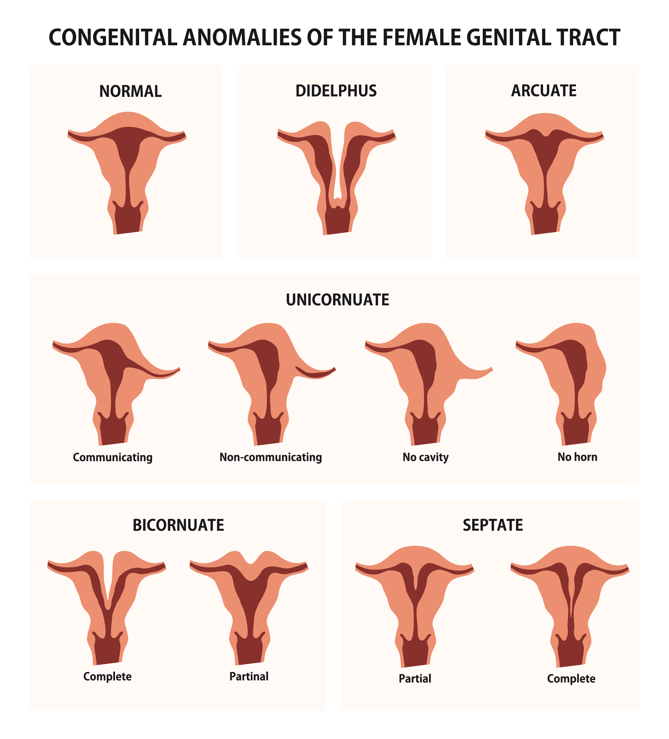 Different Types Uterine Fibroids