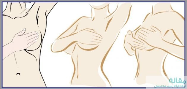 اسباب تحجر الثدي