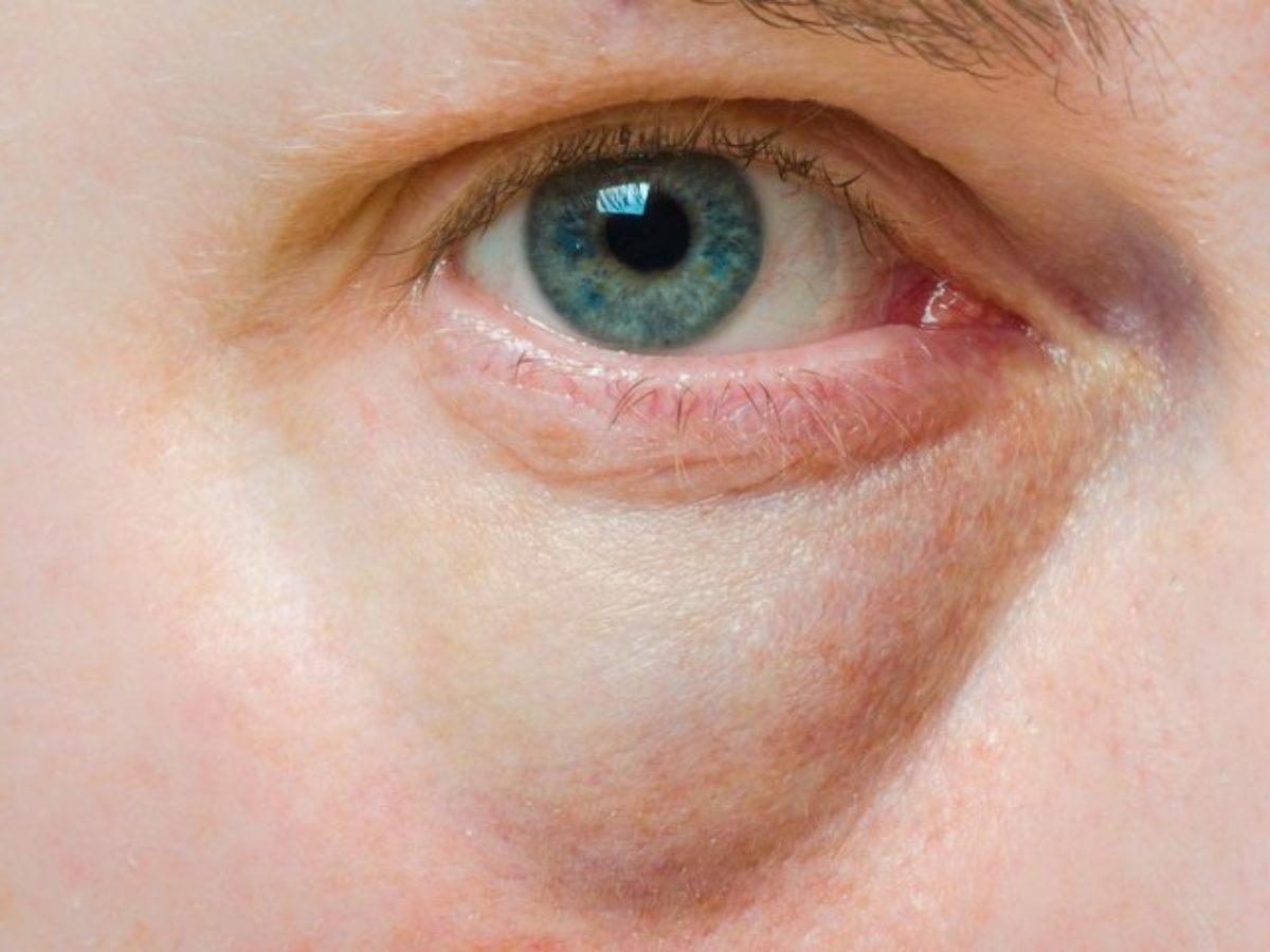 نصائح هامه للتخلص من الانتفاخات تحت العينين