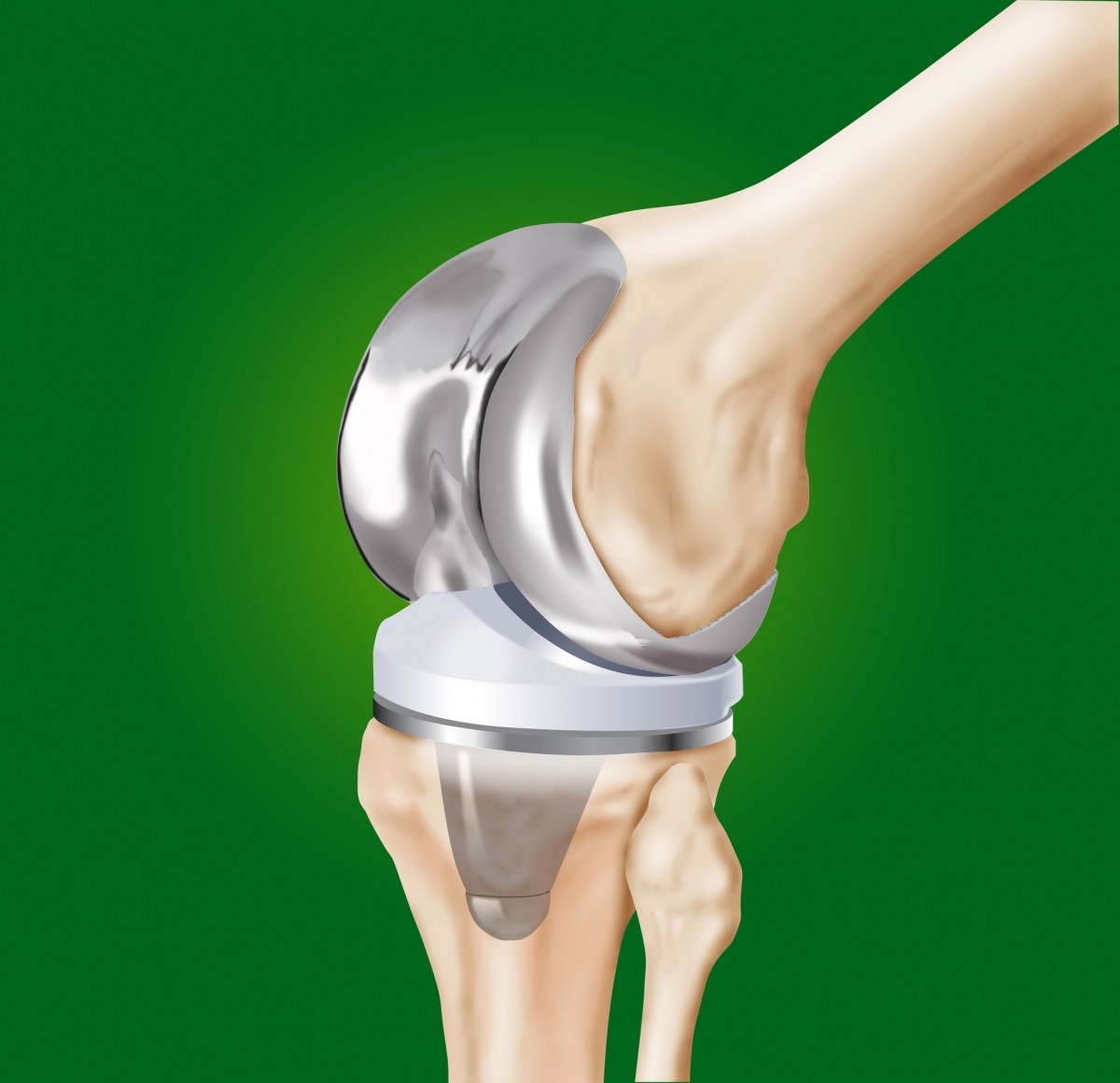 Knee Replacement Infection Treatment