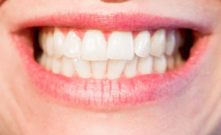 teeth of woman