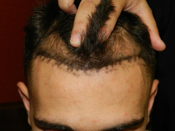 men hair loss solutions