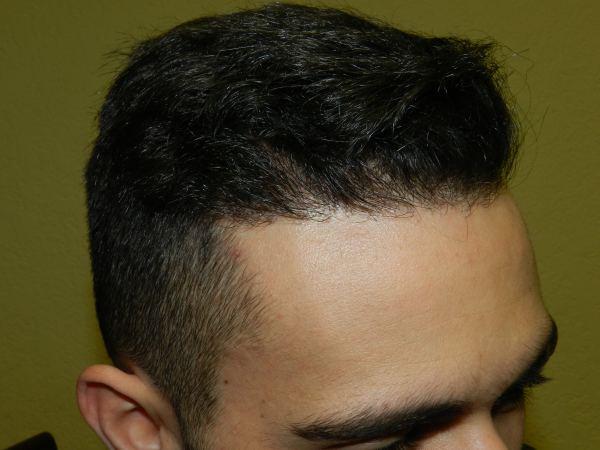 Hairline Surgery San Jose