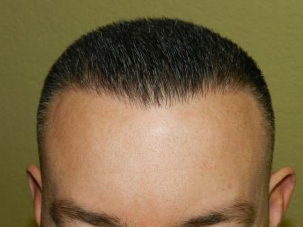 fue men hair transplant san-jose