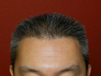 fue hair transplant after