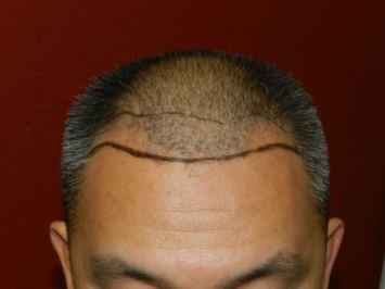 hair-implant-surgery-for-men