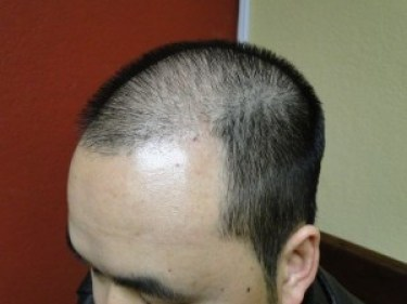 men hair loss treatment San Jose