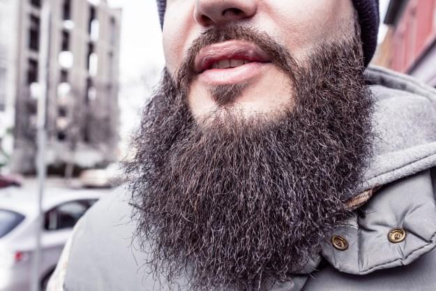 San Francisco Man with Beard Hair Loss Treatment