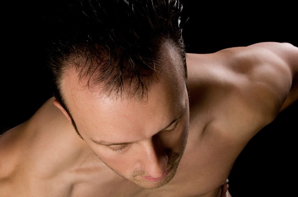 View of San Jose man's thinning hair from top