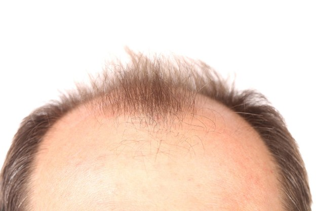 san francisco hair transplant doctor