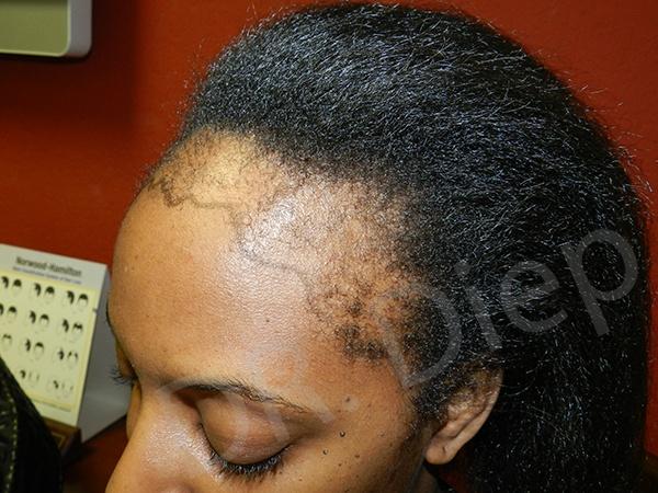 african american hair transplant san jose