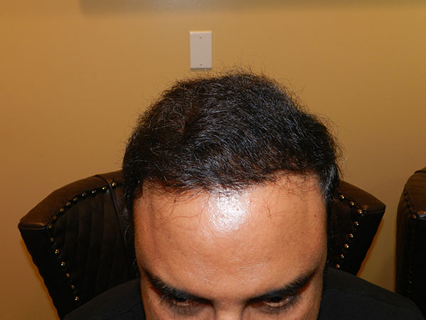after hairline surgery san francisco