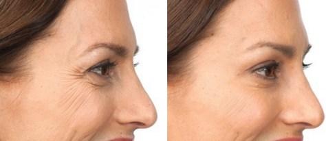 Resultado de imagen para botox
