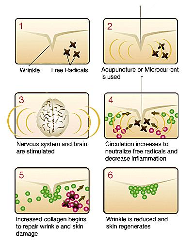 Process of Microcurrent Facial Rejuvenation