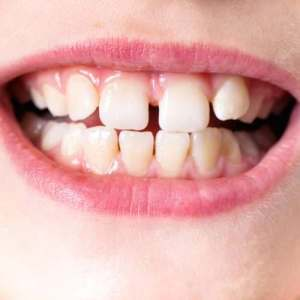 what is causing that gap in your childs front teeth