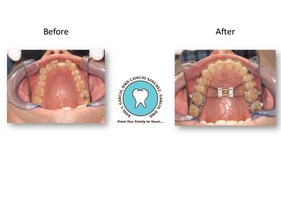 Miami Functional Orthodontics Treatments