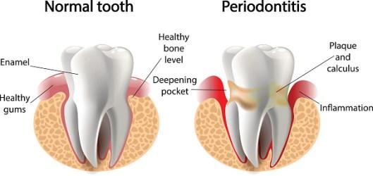 Rekonstruksi Mulut Total- Global Estetik Dental Care