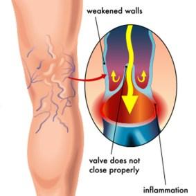 varicose vein cause illustration