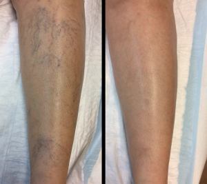spider vein removal treatment