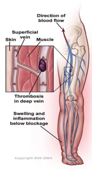 Chronic Venous Insufficiency Guide | Symptoms, Causes