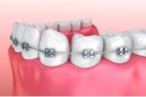 braces..