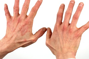 Blotchy Hands