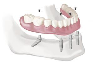 all on 4 dental implants, michael sinkin, dental implants