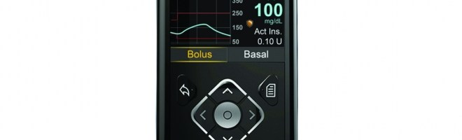 Minimed 630G Insulin Pump