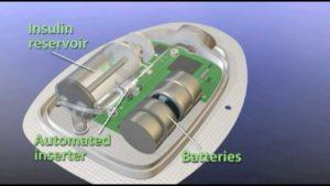 Pod Pump Internals