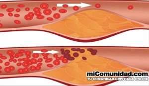 Dile adiós a las arterias obstruidas, alta presión arterial y el colesterol malo!