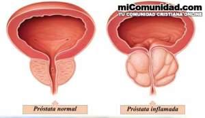 Remedios caseros para la próstata inflamada