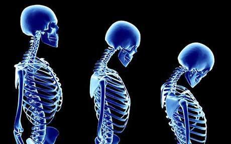 osteoporosisartwor_1704143c.jpg