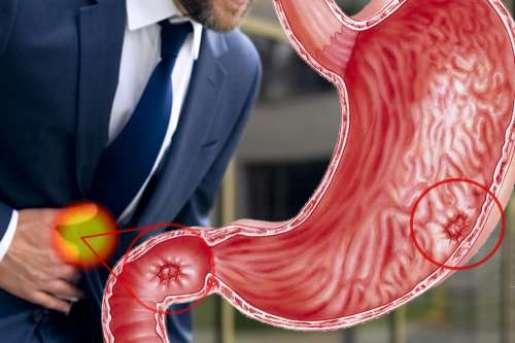 Nella figura sono riportati gli organi colpiti dall'ulcera peptidica provocata dall'abuso di Aspira. Curabile  con la terapia batterica a base di bifidobatteri.