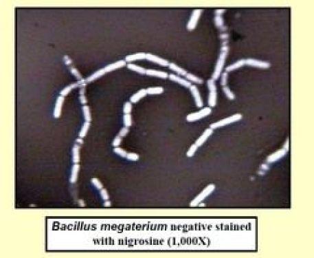 Colorazione in negativo di Bacillus megaterium con Nigrosina