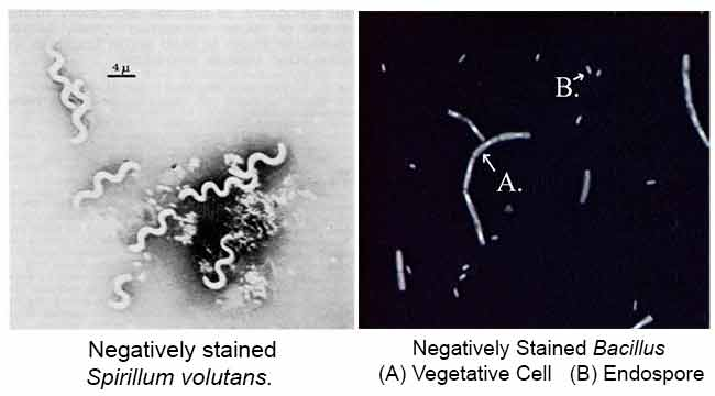 Colorazione in negativo di Spirillum voluntans e Bacillus con endospore