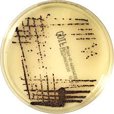CHROMID C. difficile agar