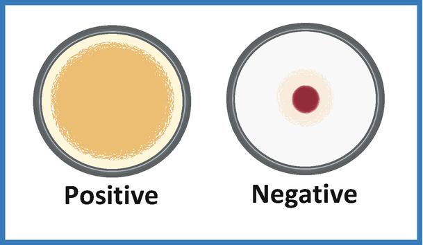 Figura 4 - Positività e negatività del TPHA