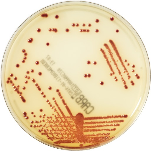 Immagine del CHROMID agar con colonie di E. coli ATCC®1011230 (NDM1) in rosa