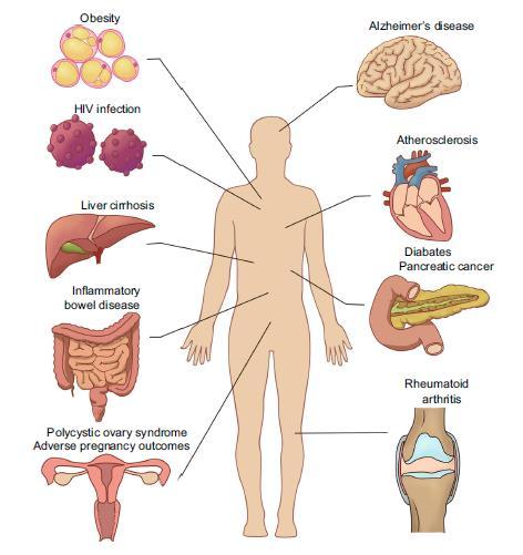 La disbiosi microbica orale contribuisce alla sistemica variabile elaborazione delle malattie compreso gastrointestinale malattie del sistema come malattia infiammatoria intestinale, cirrosi epatica, pancreatica cancro, malattie del sistema nervoso come la malattia di Alzheimer, sistema endocrino malattie come il diabete, esiti avversi della gravidanza, obesità e policistico sindrome dell'ovaio, immune malattie del sistema come artrite reumatoide e HIV infezione e cardiovascolare malattie del sistema come aterosclerosi.