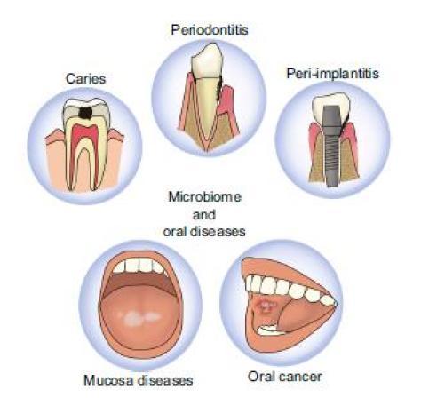 Vari tipi e vari numeri di batteri sono stati trovati nelle persone con diverse malattie orali come la carie dentale, peridontale malattie, malattie della mucosa (ad es. lichen planus, leucoplachia), cancro orale e perimplantite.