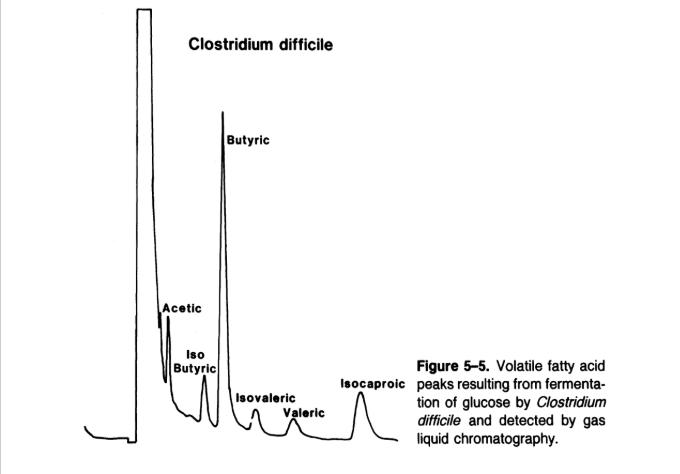 Picchi risultanti da una GLC su acidi grassi volatili prodotti da C. difficile.