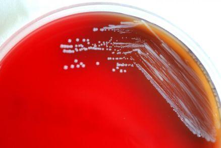 Brucella abortus in blood agar