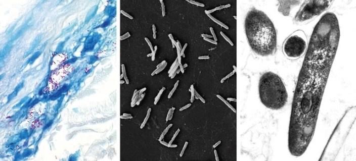 Mycobacterium leprae microscopia