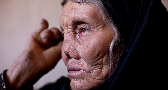 Forma lepromatosa di malattia lebbrosa in corso di infezione da mycobacterium leprae