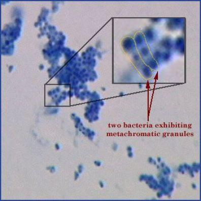 colorazione al blu di metilene di Corynebacteria