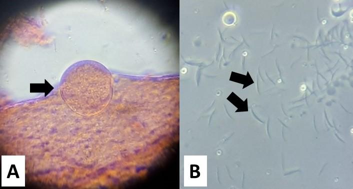Stadi di sviluppo di Plasmodium vivax nella zanzara