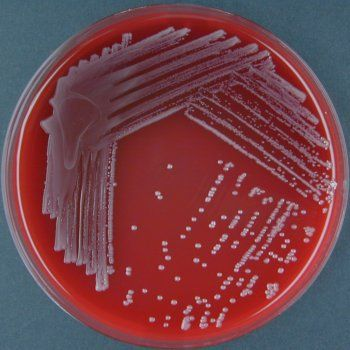 Bordet Gengou Blood Agar